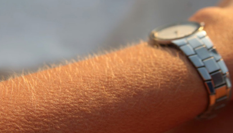 Arm showing goosebumps on listening to music